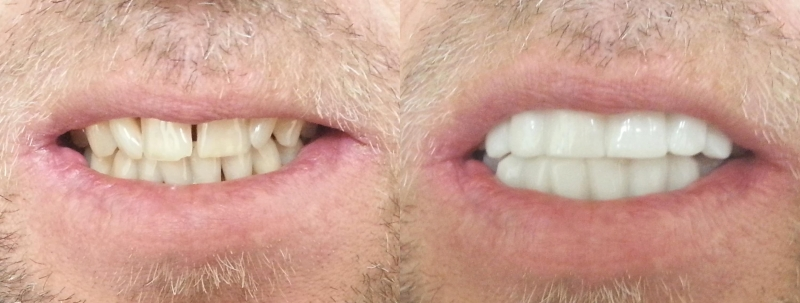 sfxcliponsmilebeforeafter6