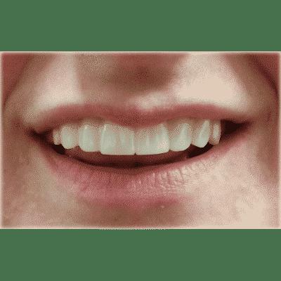 Clip On Smile - Instant Snap On Veneers