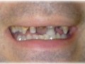 clip-on-veneer-smile-make-over-afters