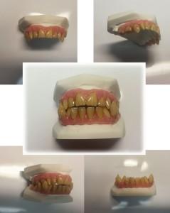 Wolf Fangs SFX Dental Custom Veneer