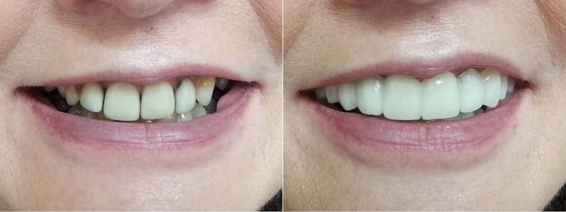 before and after shade a2 clip on veneers