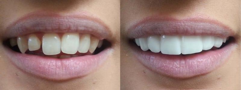Absolute Clip on Veneers bleach shade before afters