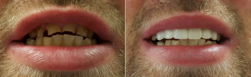 Daniel before and after shade B1 clip on veneers