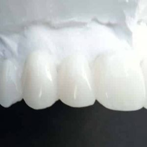 Ultimate Clip On Veneers