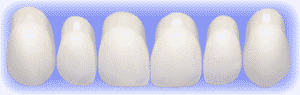 choosing a tooth shape using the interactive smile system